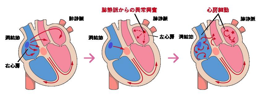 心房 発作 動 性 細 心房細動