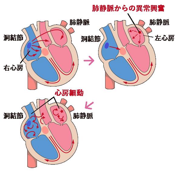 心房細動の原因と仕組み 教えて!心房細動.com